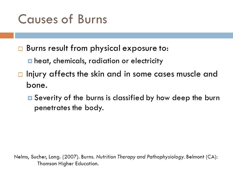 Causes of Burns Burns result from physical exposure to:
