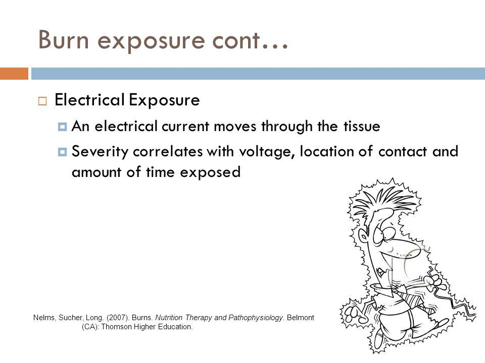 Burn exposure cont… Electrical Exposure