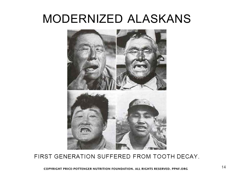 FIRST GENERATION SUFFERED FROM TOOTH DECAY.