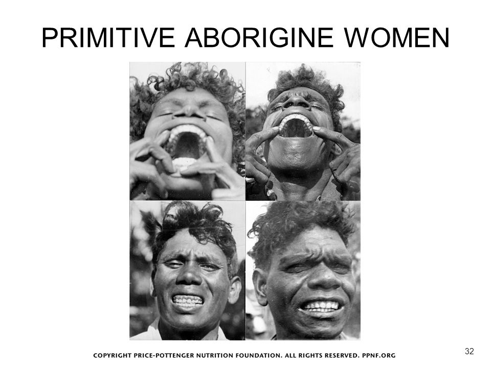 PRIMITIVE ABORIGINE WOMEN
