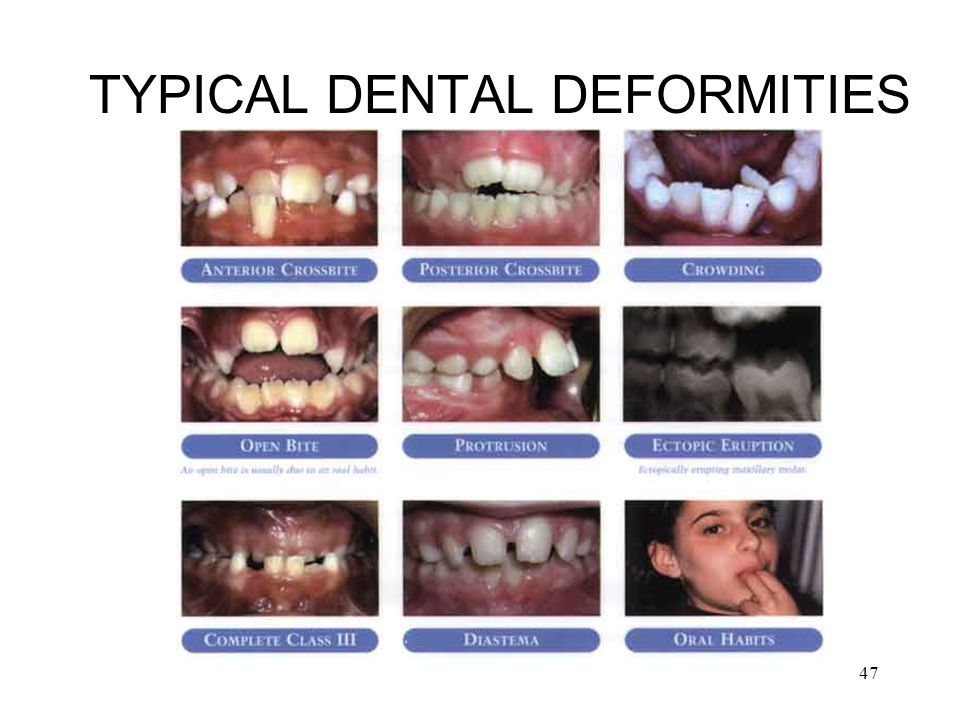TYPICAL DENTAL DEFORMITIES