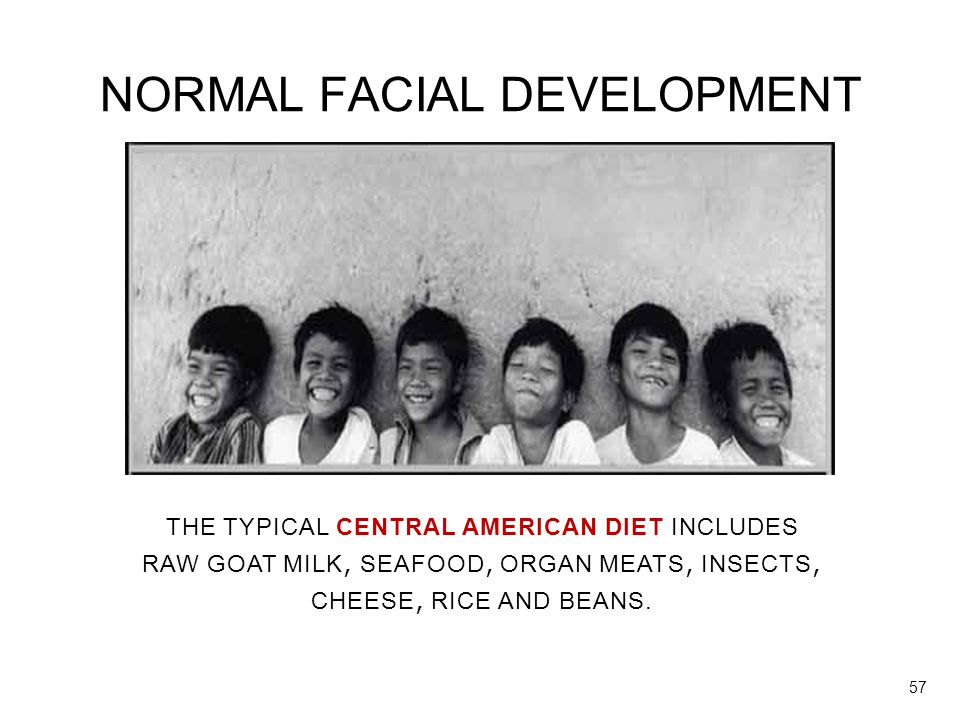 NORMAL FACIAL DEVELOPMENT