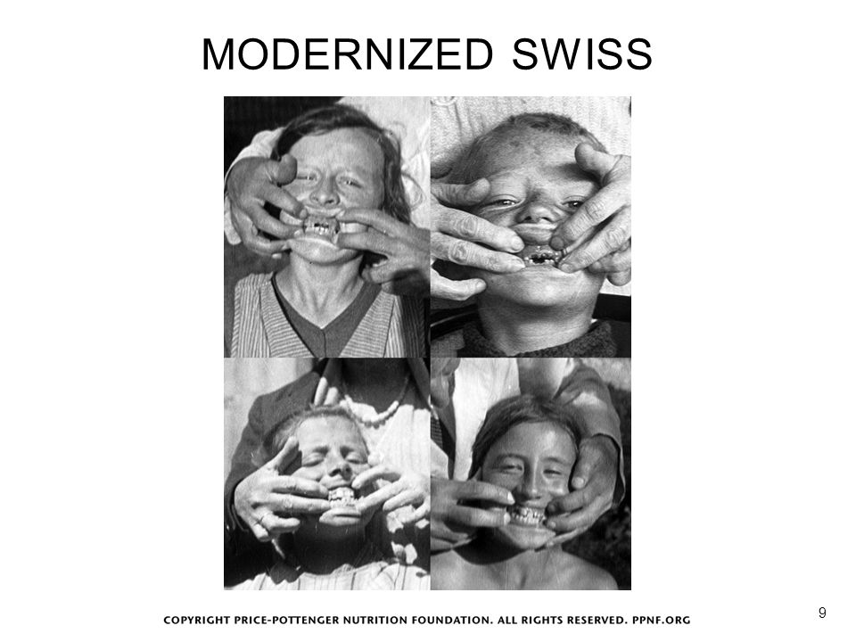 MODERNIZED SWISS