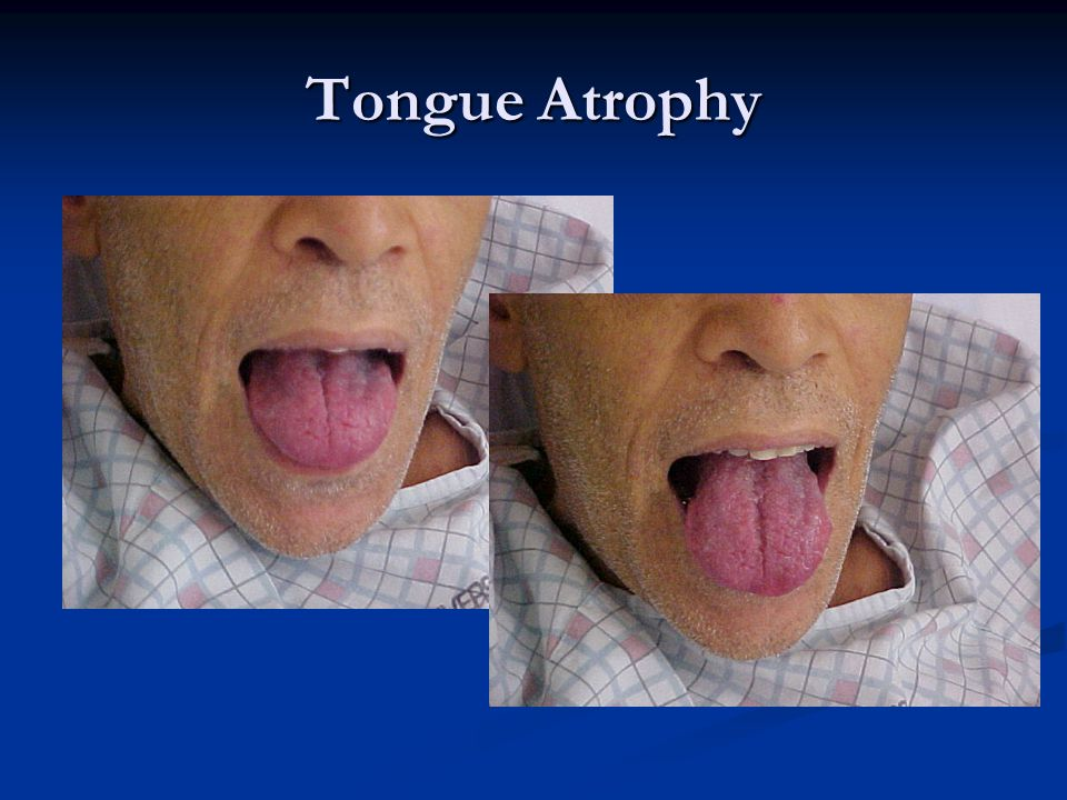 Tongue Atrophy