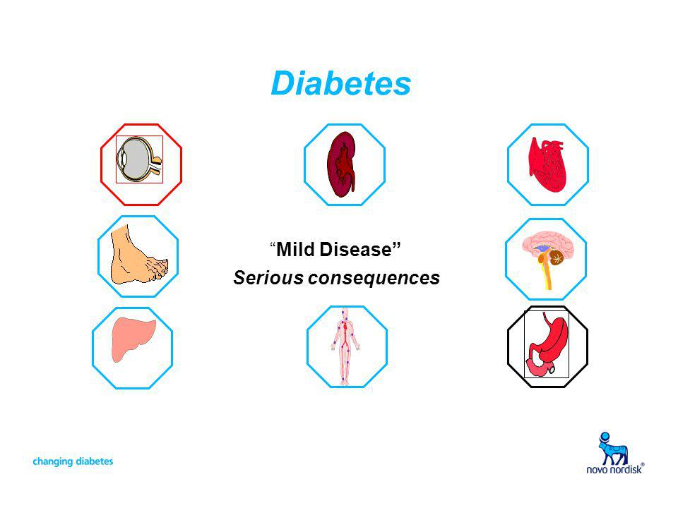 Diabetes Mild Disease Serious consequences