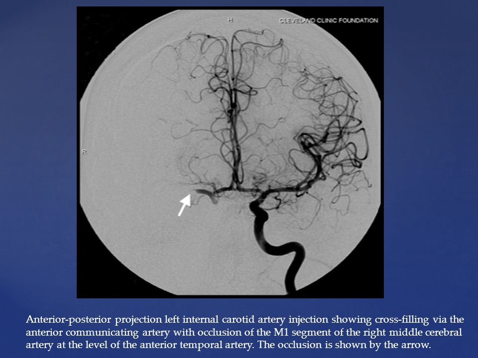 Anterior-posterior projection left internal carotid artery injection showing cross-filling via the anterior communicating artery with occlusion of the M1 segment of the right middle cerebral artery at the level of the anterior temporal artery.