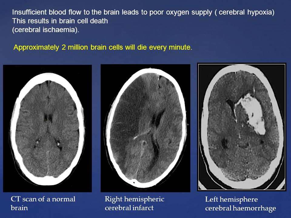 Insufficient blood flow to the brain leads to poor oxygen supply ( cerebral hypoxia) This results in brain cell death