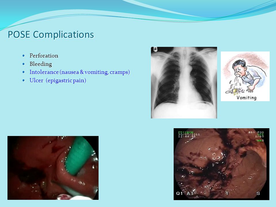 POSE Complications Perforation Bleeding
