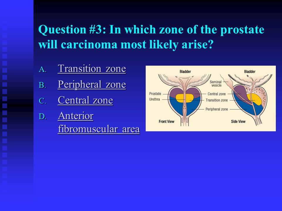 Question #3: In which zone of the prostate will carcinoma most likely arise
