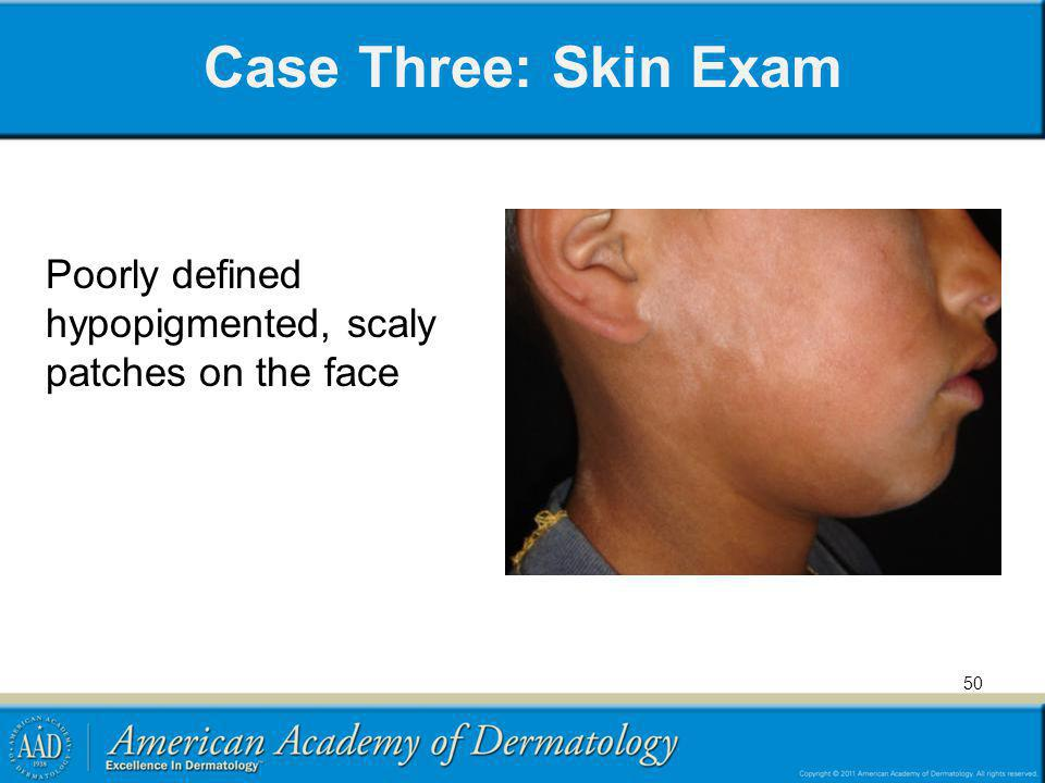 Case Three: Skin Exam Poorly defined hypopigmented, scaly patches on the face