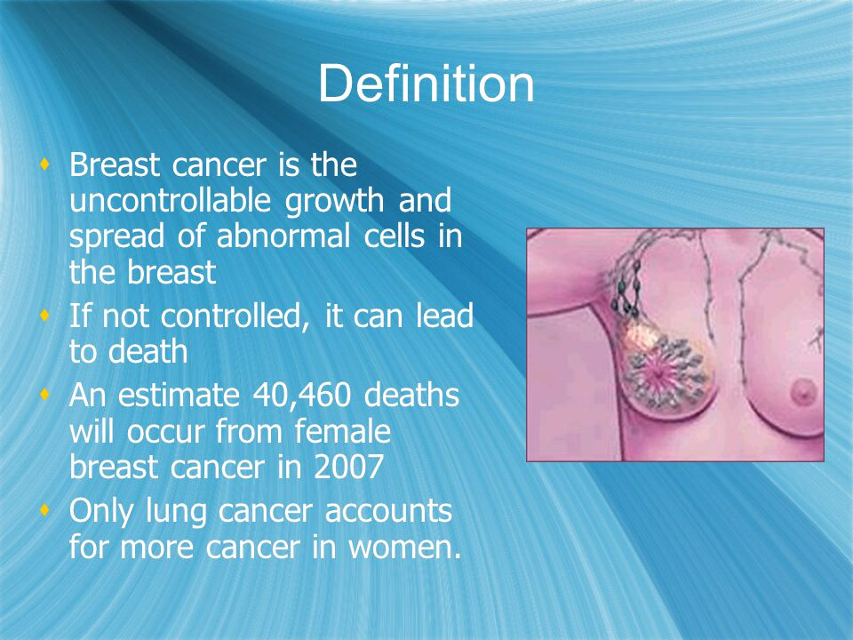 Definition Breast cancer is the uncontrollable growth and spread of abnormal cells in the breast. If not controlled, it can lead to death.