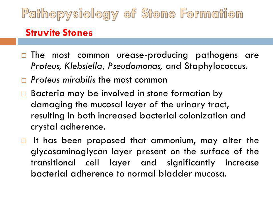 Pathopysiology of Stone Formation Struvite Stones