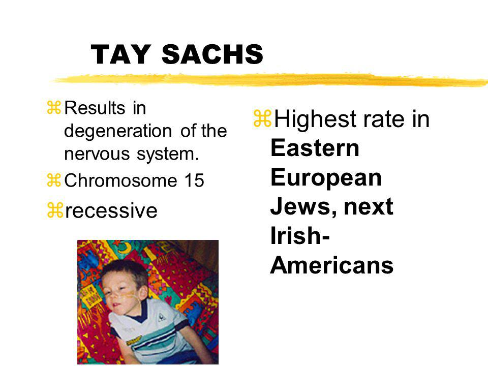 TAY SACHS Highest rate in Eastern European Jews, next Irish-Americans