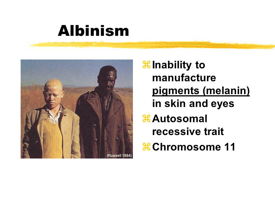 Albinism Inability to manufacture pigments (melanin) in skin and eyes