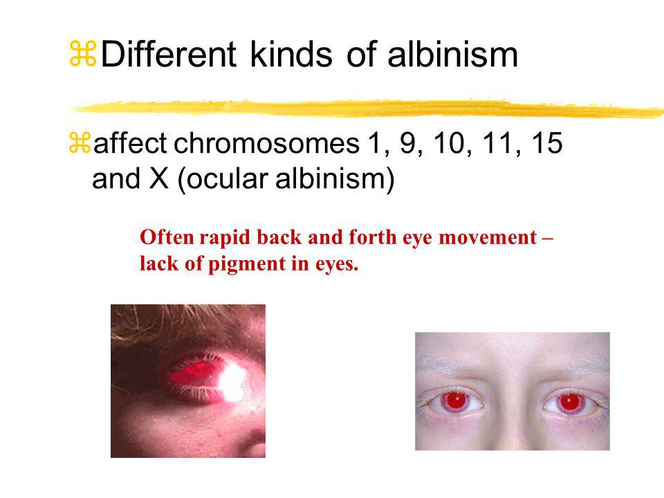 Different kinds of albinism