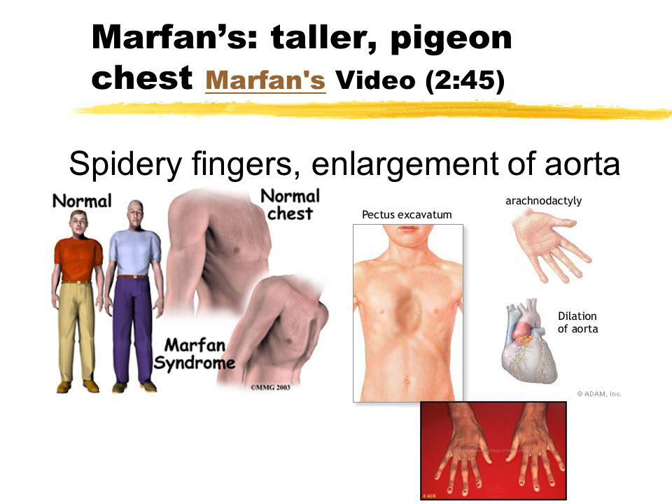Marfan's: taller, pigeon chest Marfan s Video (2:45)
