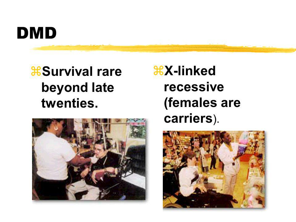DMD Survival rare beyond late twenties.