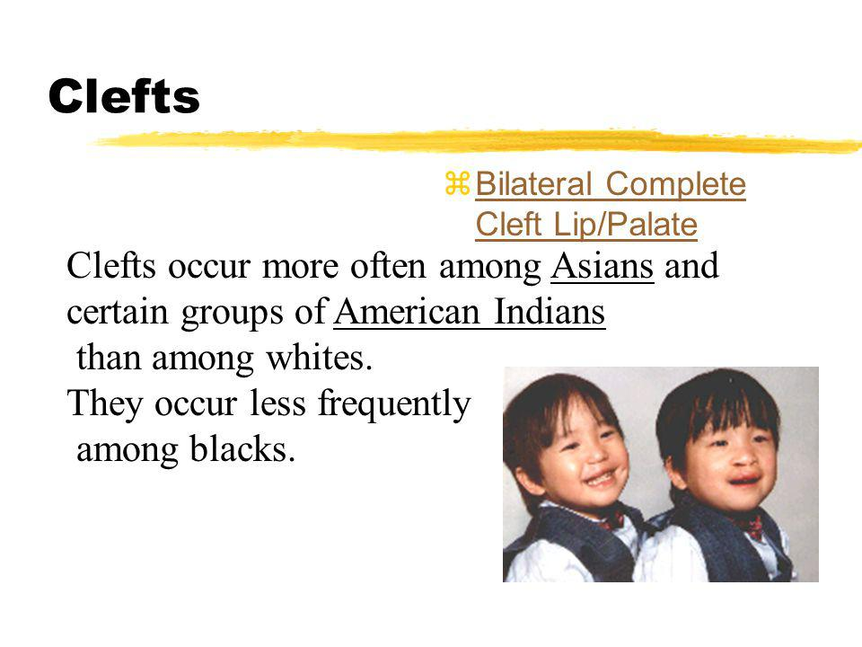 Clefts Bilateral Complete Cleft Lip/Palate. Clefts occur more often among Asians and certain groups of American Indians.