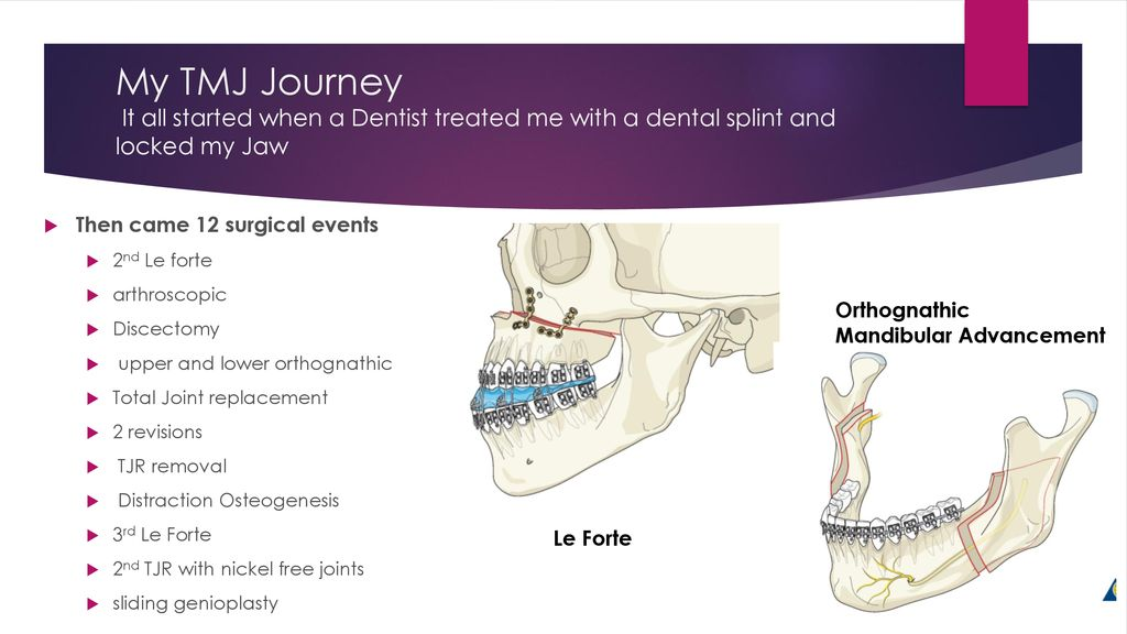 Tmj Total Joint Replacement Patient Ppt Download