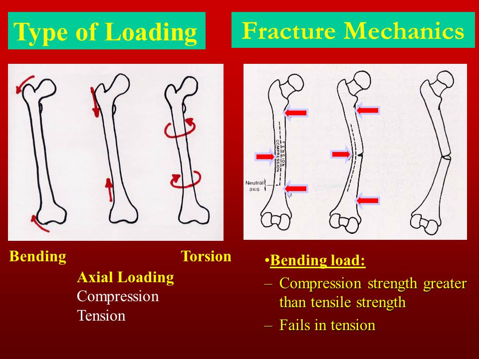 Type of Loading Fracture Mechanics Bending Torsion Bending load: