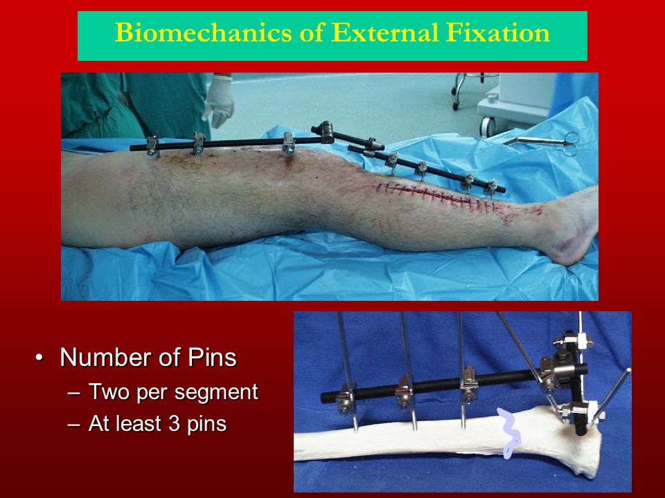 Biomechanics of External Fixation