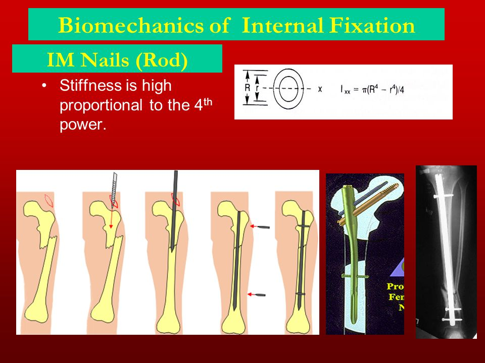 Biomechanics of Internal Fixation