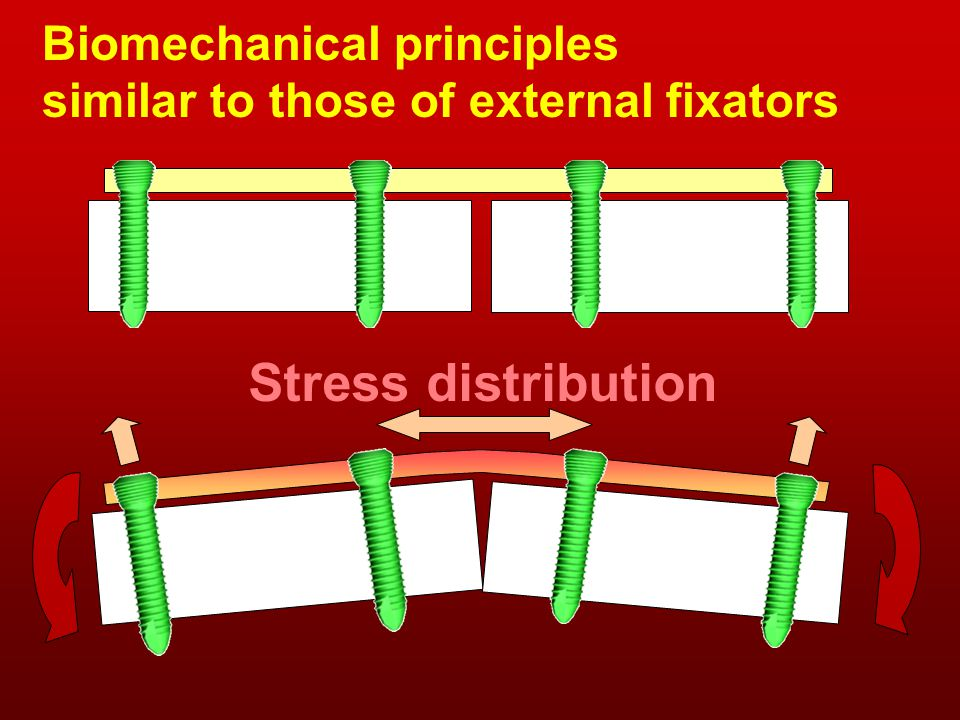 Biomechanical principles similar to those of external fixators