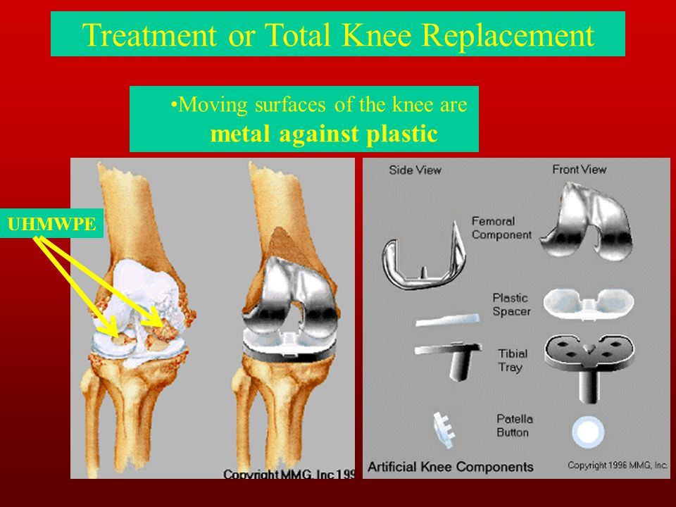 Treatment or Total Knee Replacement