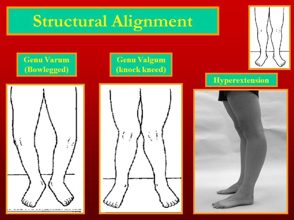 Structural Alignment Genu Varum (Bowlegged) Genu Valgum (knock kneed)