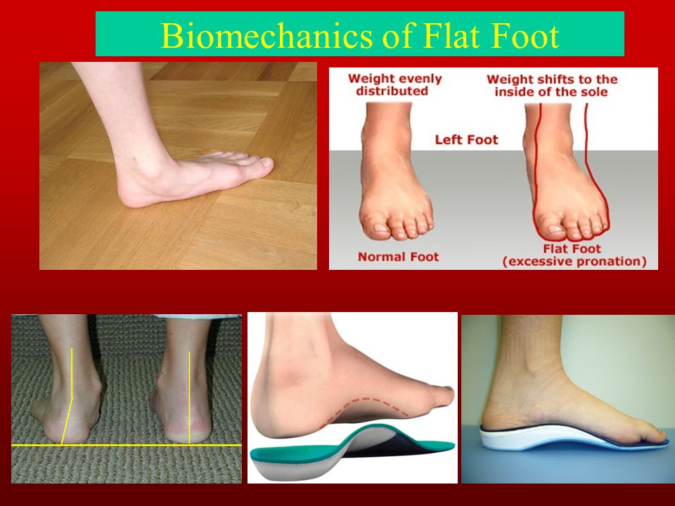 Biomechanics of Flat Foot