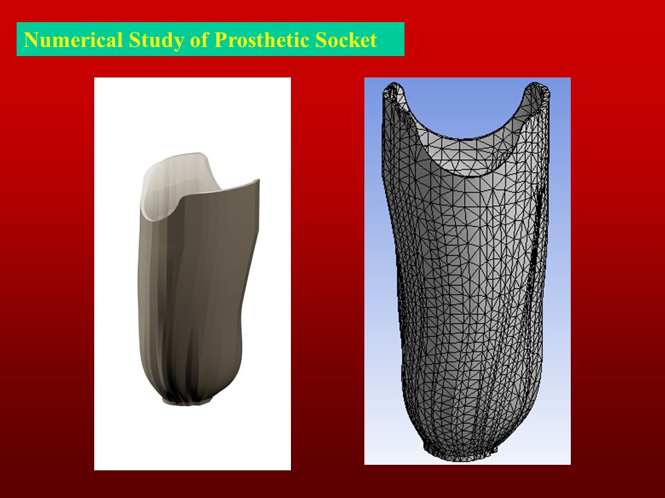 Numerical Study of Prosthetic Socket