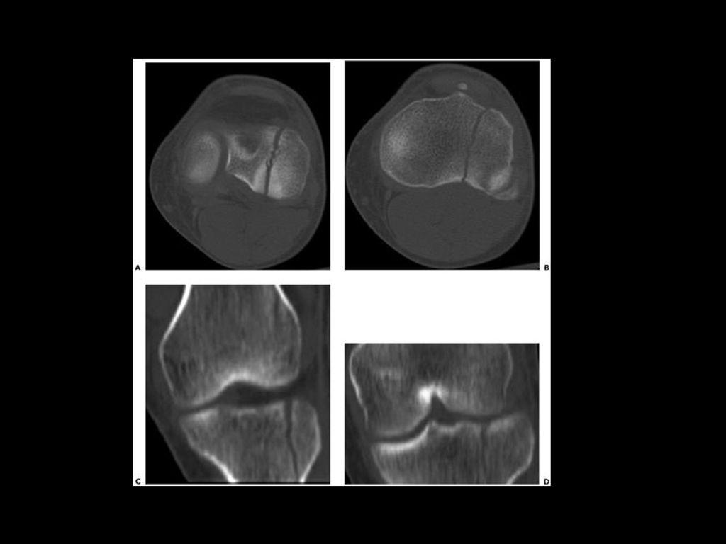 50325388d5 35 Figure 22-122 Tibial plateau fracture, Schatzker type 1