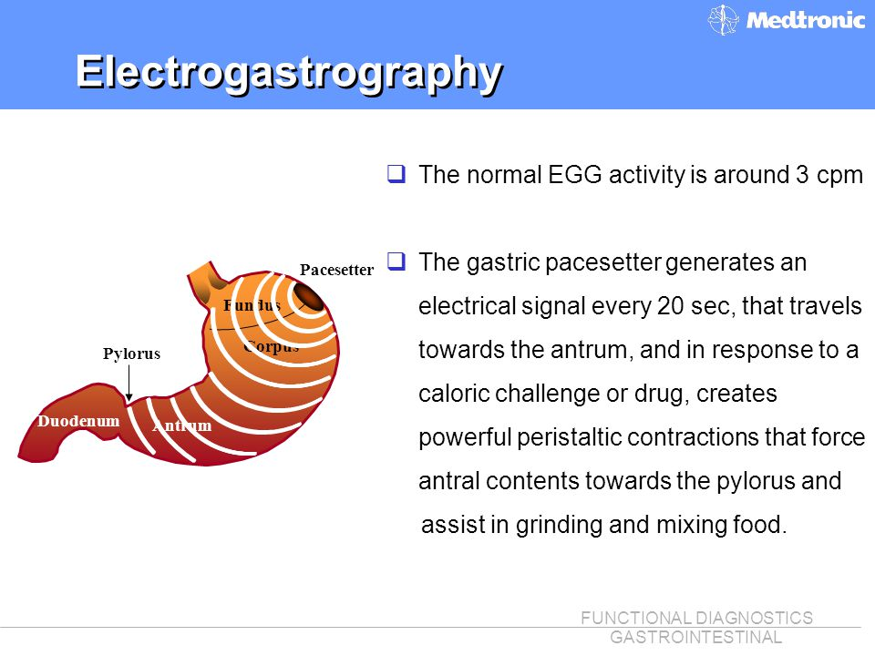 Electrogastrography The normal EGG activity is around 3 cpm