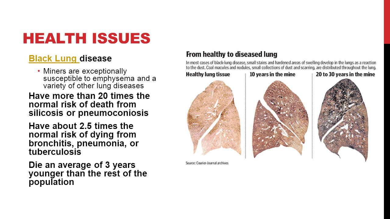 Health Issues Black Lung disease