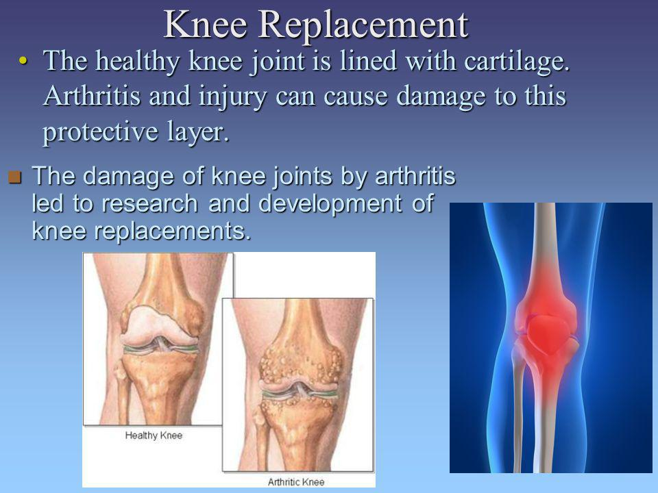 Knee Replacement The healthy knee joint is lined with cartilage. Arthritis and injury can cause damage to this protective layer.
