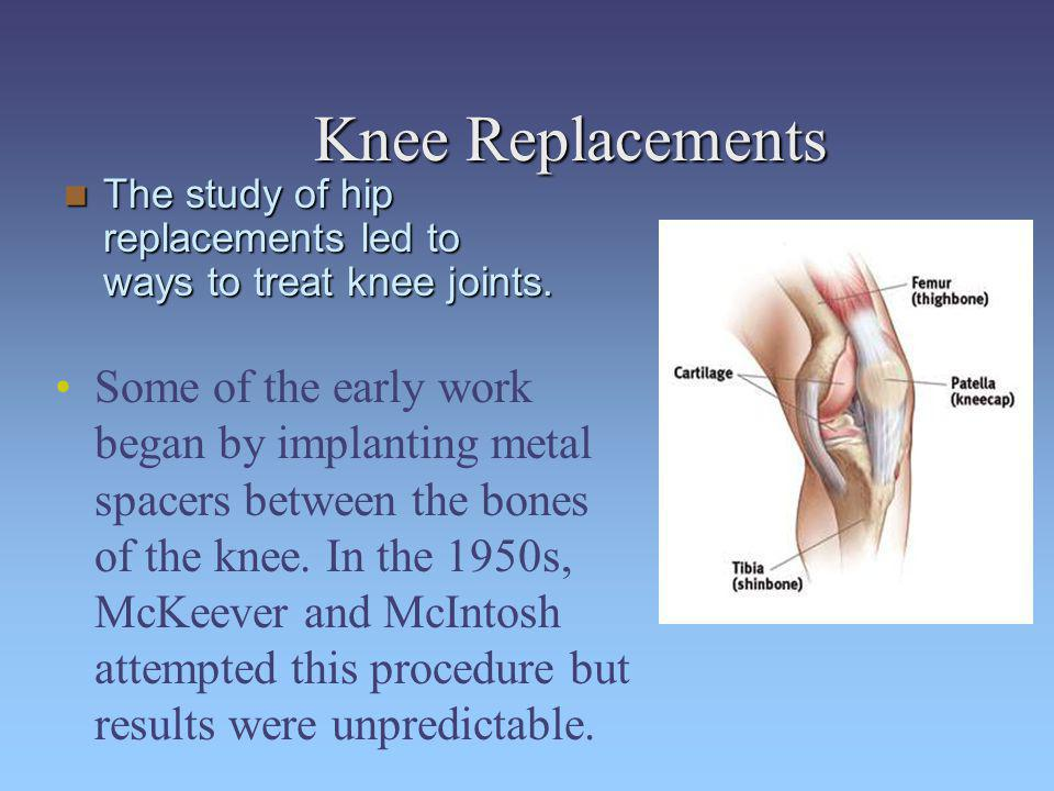 Knee Replacements The study of hip replacements led to ways to treat knee joints.