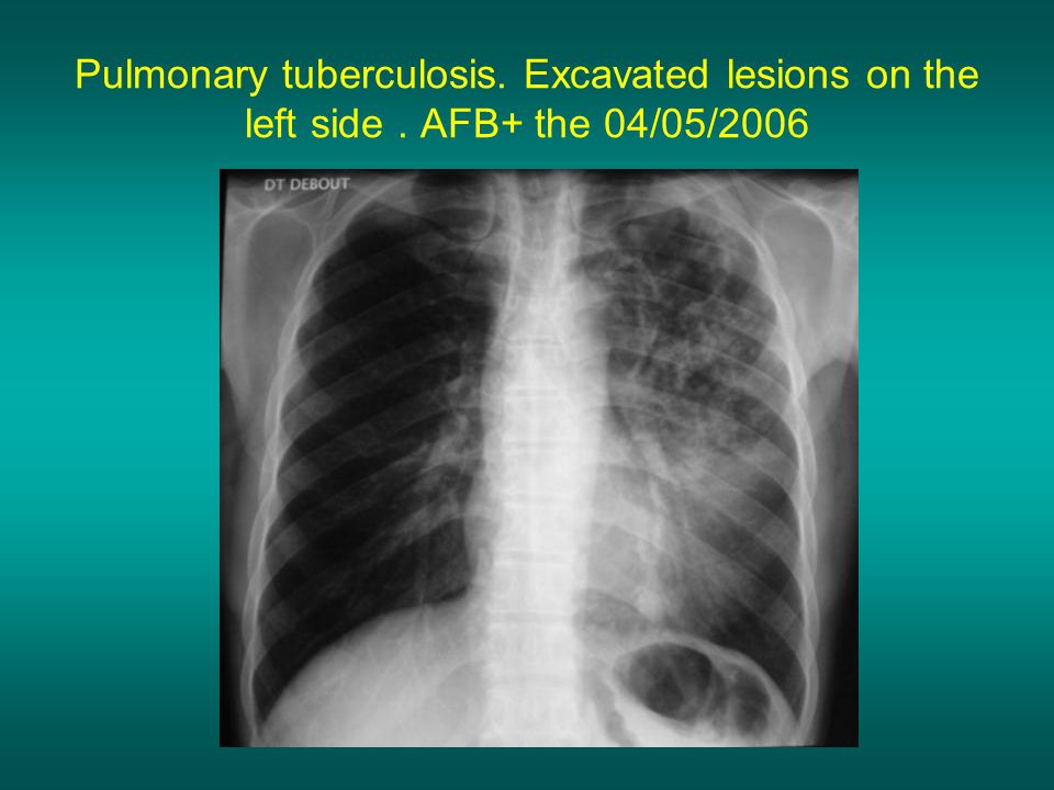 Pulmonary tuberculosis. Excavated lesions on the left side