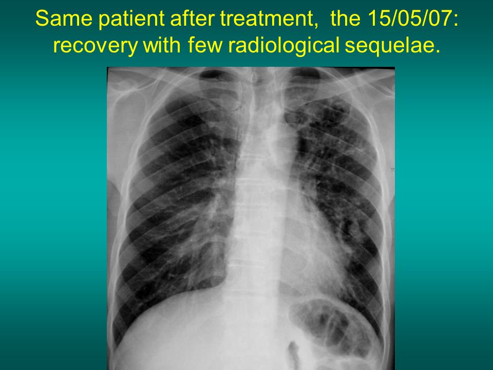 Same patient after treatment, the 15/05/07: recovery with few radiological sequelae.