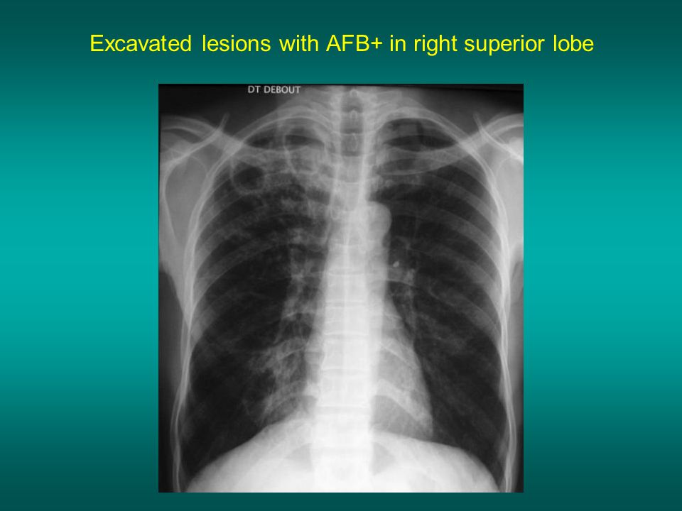 Excavated lesions with AFB+ in right superior lobe
