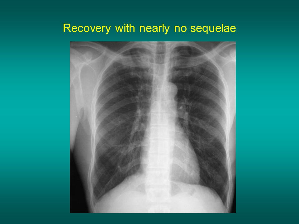 Recovery with nearly no sequelae
