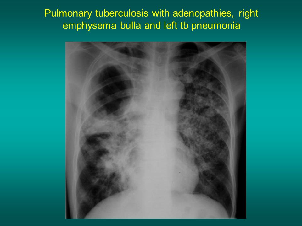 Pulmonary tuberculosis with adenopathies, right emphysema bulla and left tb pneumonia