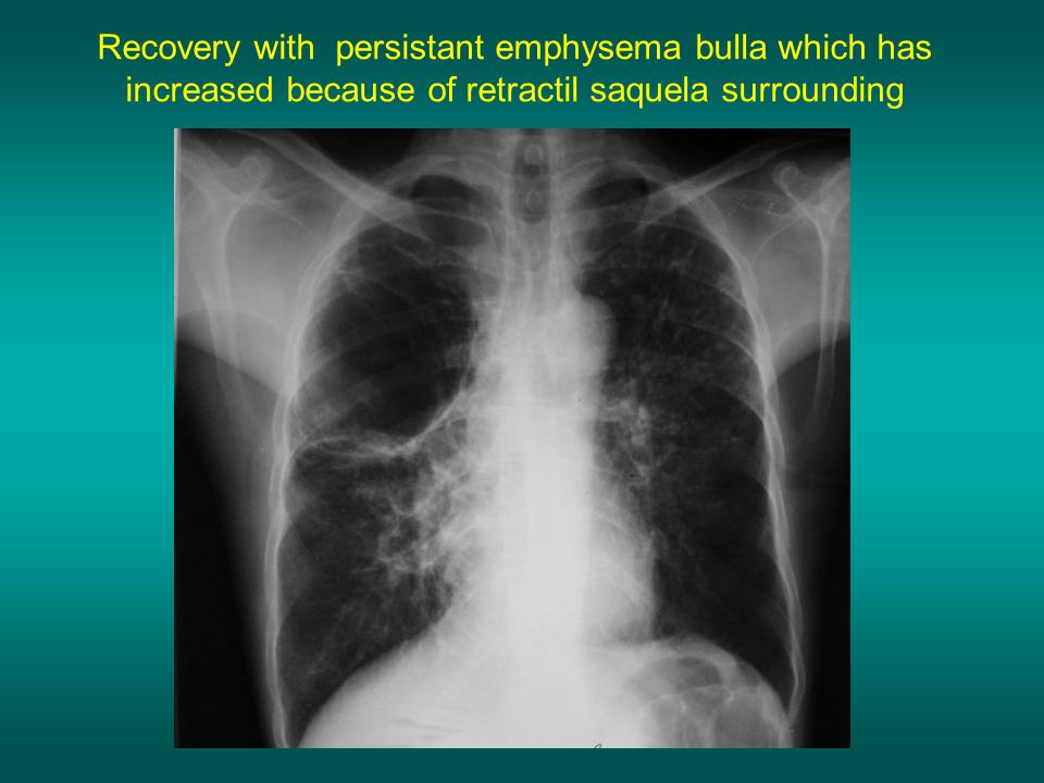 Recovery with persistant emphysema bulla which has increased because of retractil saquela surrounding