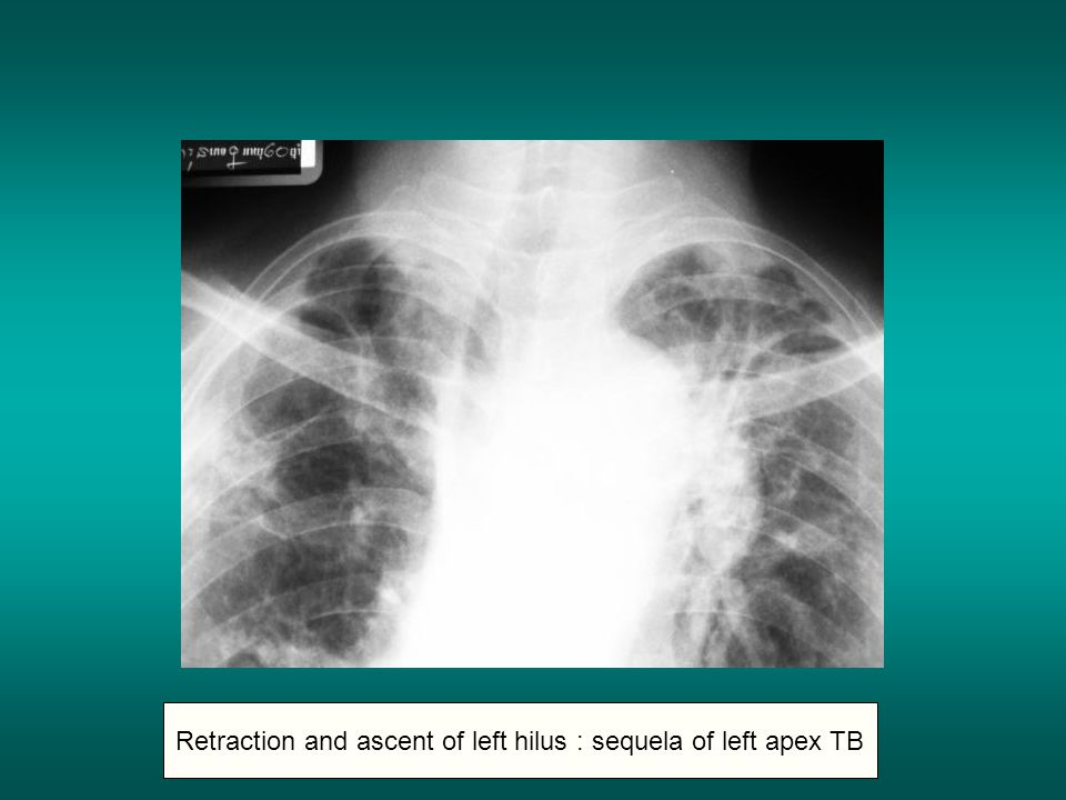 Retraction and ascent of left hilus : sequela of left apex TB
