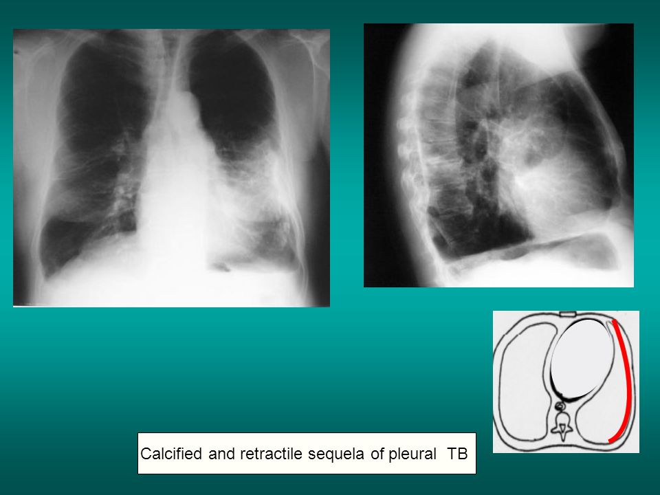 Calcified and retractile sequela of pleural TB
