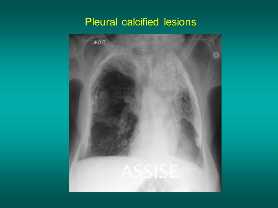 Pleural calcified lesions