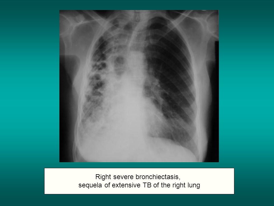 Right severe bronchiectasis, sequela of extensive TB of the right lung