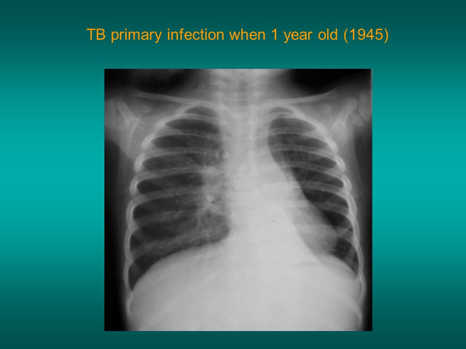 TB primary infection when 1 year old (1945)