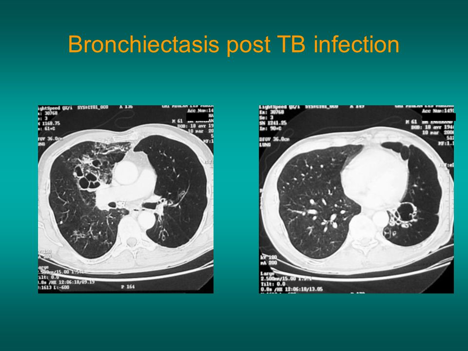 Bronchiectasis post TB infection