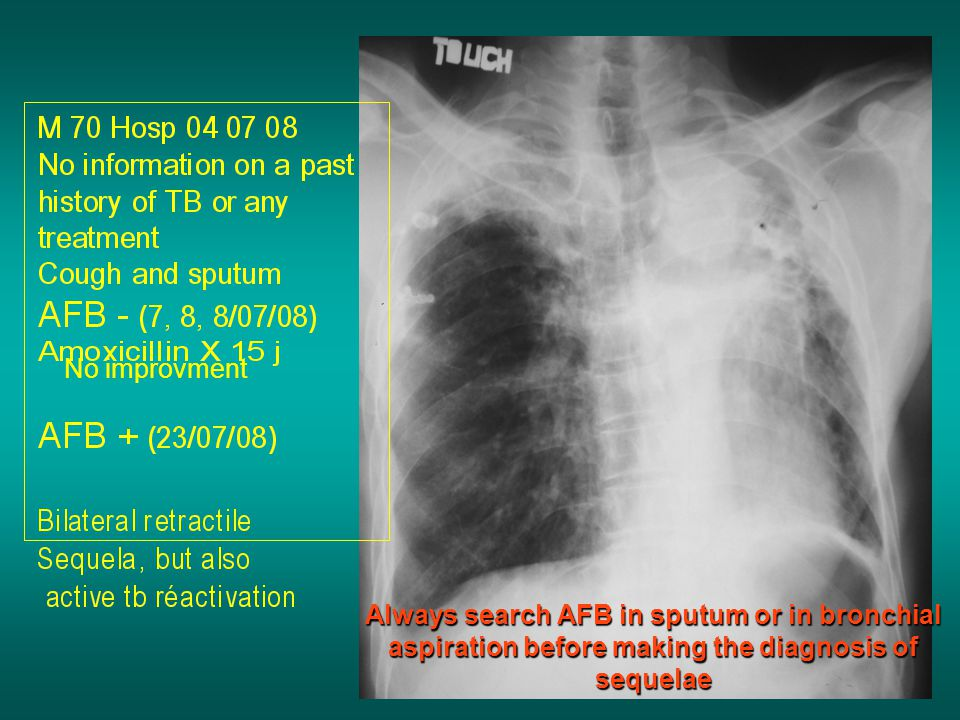 No improvment Always search AFB in sputum or in bronchial aspiration before making the diagnosis of sequelae.
