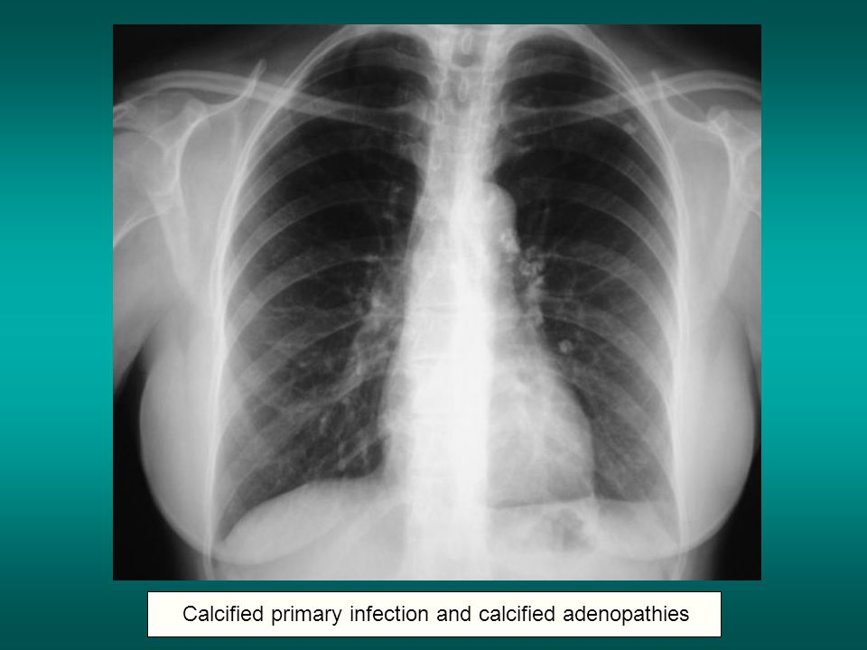 Calcified primary infection and calcified adenopathies